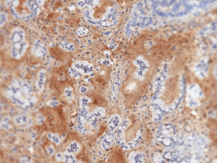 Patient Derived Pancreatic Cancer cells